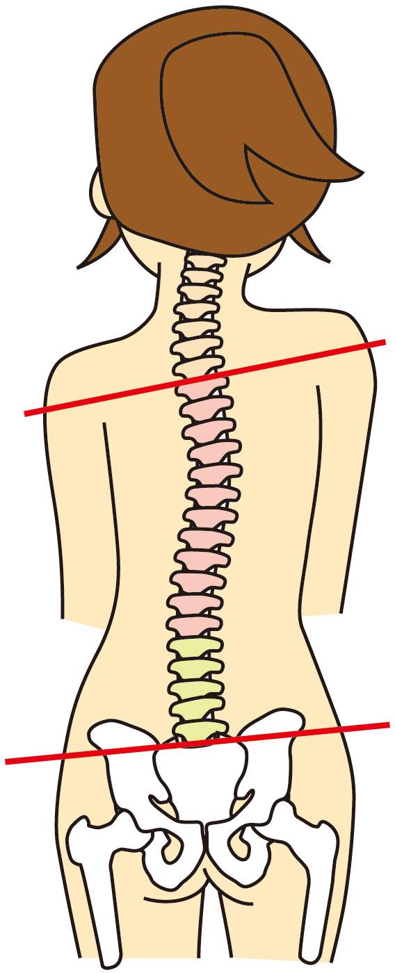 腰椎椎間板ヘルニアへの当院のアプローチは?
