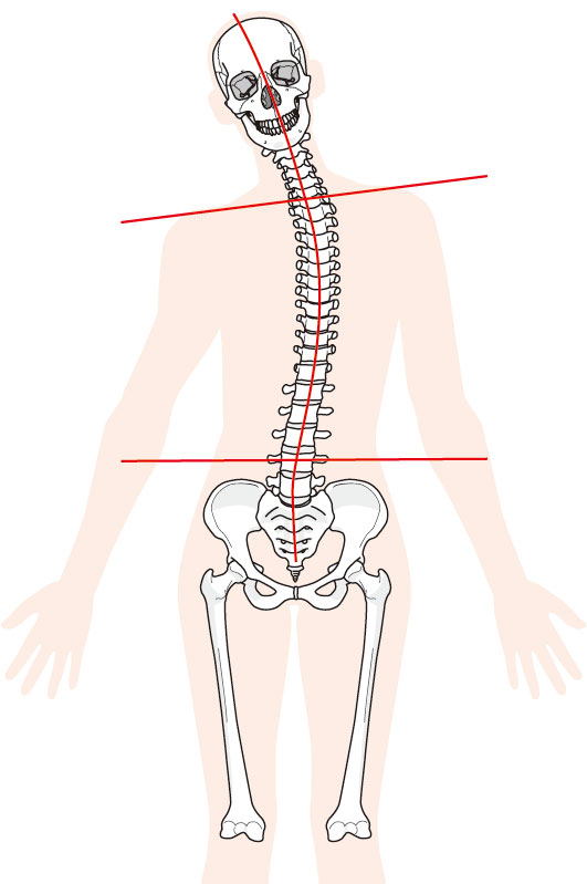 背中の痛み(ギックリ背中)への当院のアプローチは?