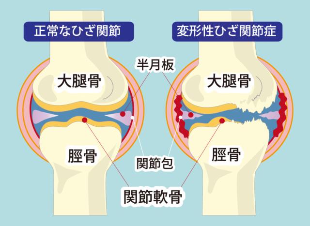 変形性膝関節症とはどんなもの?