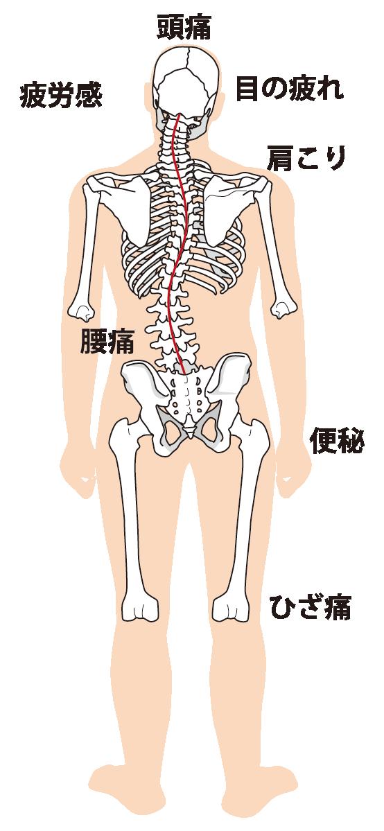 歪んだ身体のイラスト