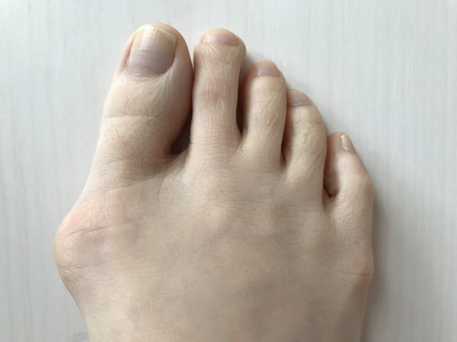 外反母趾とはどんなもの?