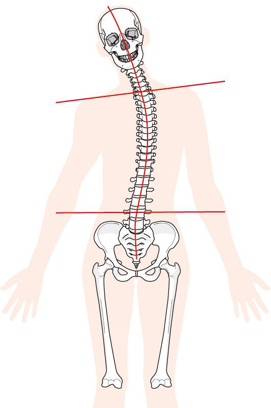 頚椎症への当院のアプローチは?