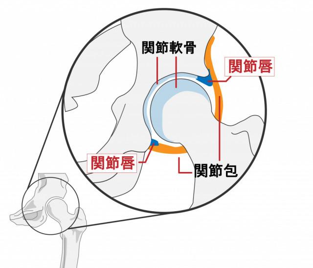 変形性股関節症とはどんなもの?