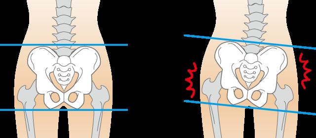 股関節痛への当院のアプローチは?